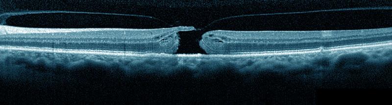 Das Makulaforamen (Loch in der Stelle schärfsten Sehens)